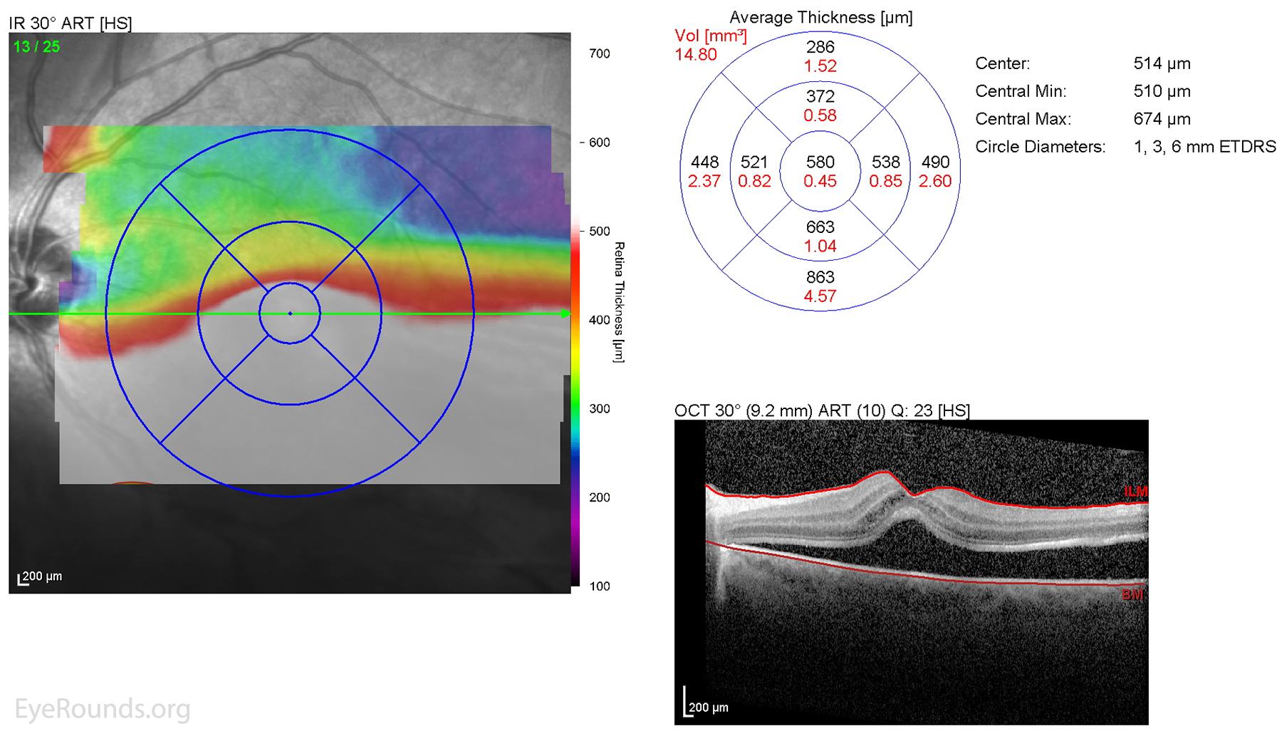 atlas of retinal oct pdf